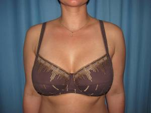 H Cup Breast Implants Breast Augmenta...