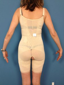 shapewear-back