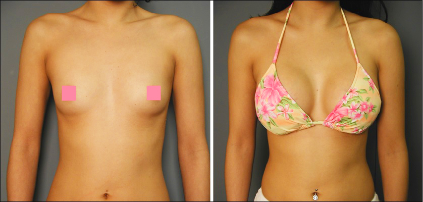 A to c breast implants before and after